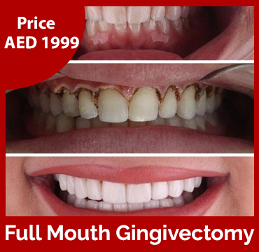 Price-images-.Full-Mouth-Gingivectomy