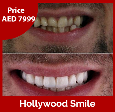 Price-images-Hollywood-Smile