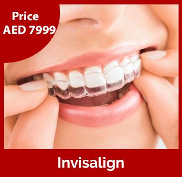 Price-images-Invisalign