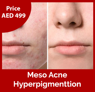 Price-images-Meso-Acne-or-Hyperpigmentation