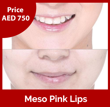 Price-images-Meso-Pink-Lips