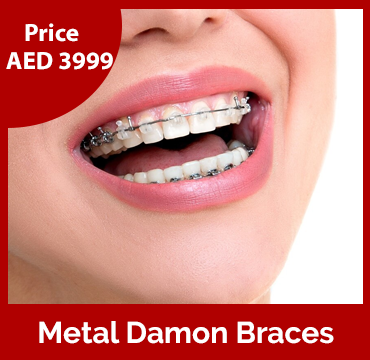 Price-images-Metal-Damon-Braces