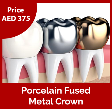 Price-images-Porcelain-Fused-Metal-Crown