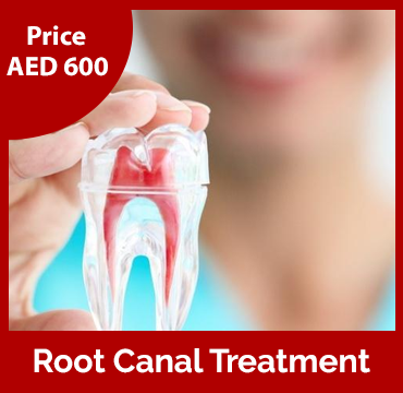 Price-images-Root-Canal-Treatment