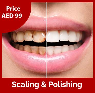 Price-images-Scaling-&-Polishing