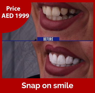 Price-images-Snap-on-smile