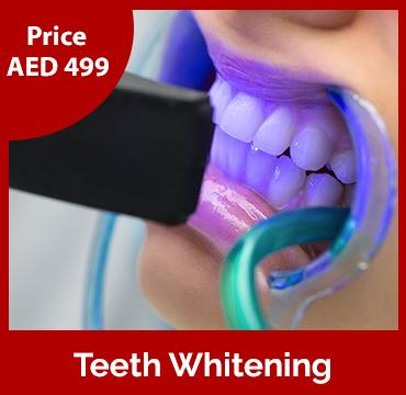 Price-images-Teeth-Whitening