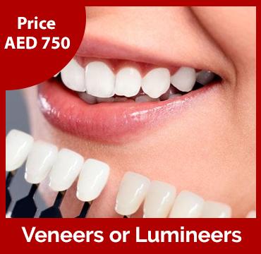 Price-images-Veneers-or-Lumineers