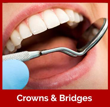 crown-bri