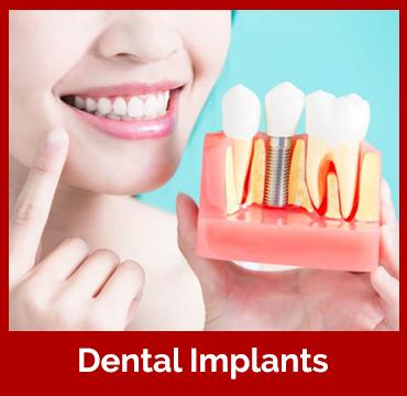 dental-imp