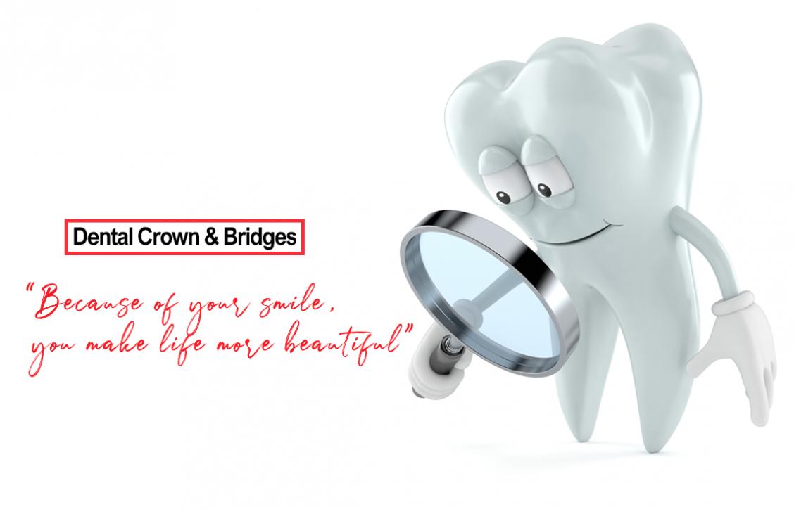 Mobile Banner Dental-Crown-&-Bridges