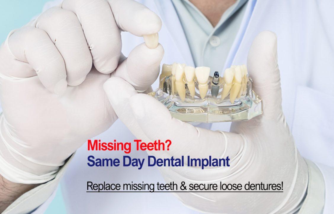 Dental Implant Mobile Banner