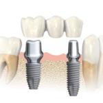 Multiple teeth implant 1