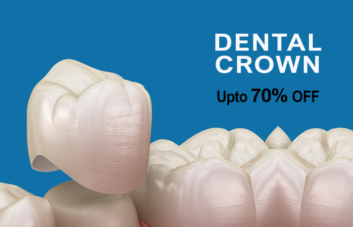 Dental Crown Mobile Banner